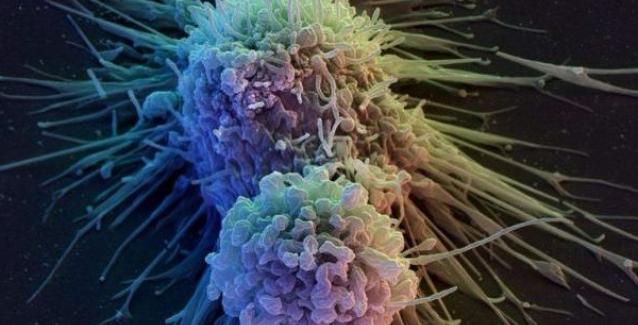 Μια παράδοξη ανακάλυψη για τον καρκίνο